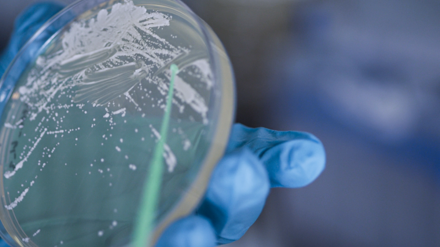 Kädessä olevasta petrimaljasta tutkitaan mikrobeja.